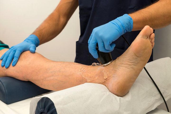 обследования при варикозе