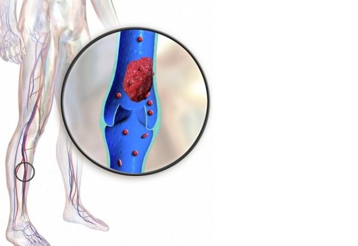 Тромбофлебит как осложнение варикозной болезни вен нижних конечностей