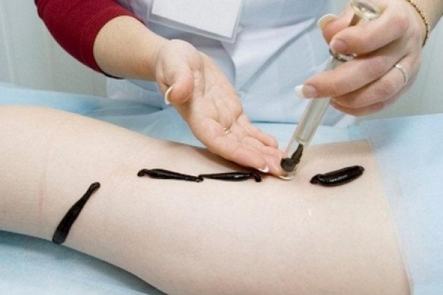 hirudoterapiya varikozun zəlilərlə müalicəsi