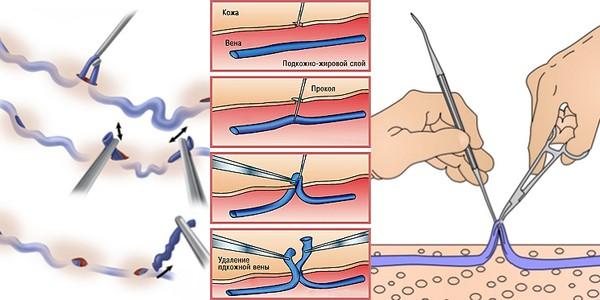 Miniflebektomiya, Минифлебэктомия